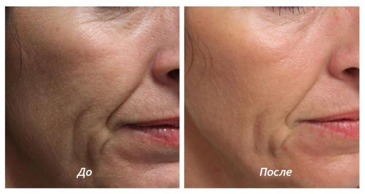 Биоревитализация - фото до и после